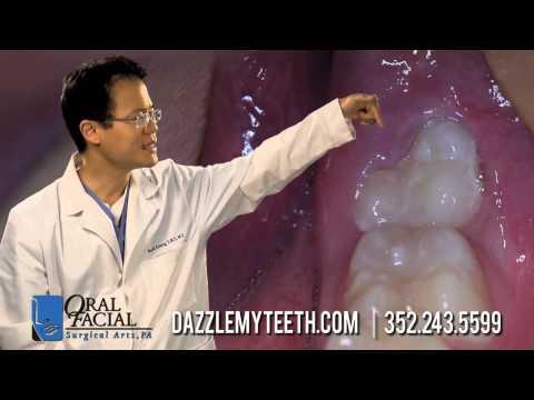 wisdom teeth pain orlando