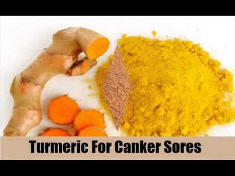 7 Natural Remedies For Treating Canker Sores