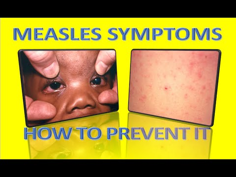 measles symptoms,health complications and How to prevent it (rubeola)