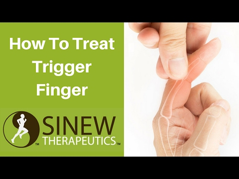 How To Treat Trigger Finger and Speed Recovery