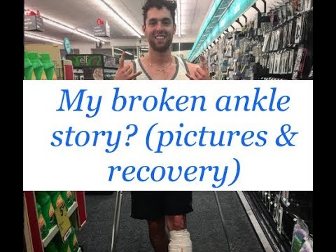 My Broken Ankle Recovery (Trimalleolar Fracture with Dislocation)
