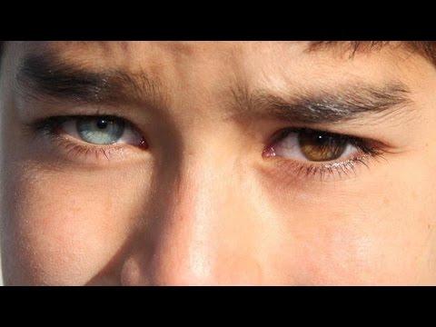 Get 1 Brown Eye & 1 Blue Eye Fast Heterochromia Subliminal Biokinesis Hypnosis Change Your Eye Color