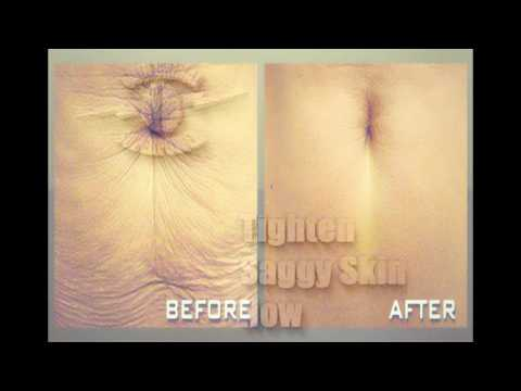 Tighten Saggy Skin Now! - Subliminal - Binaural - Frequency