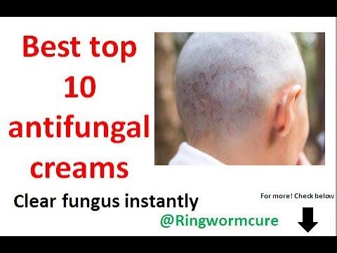 top 10 antifungal cream for ringworm