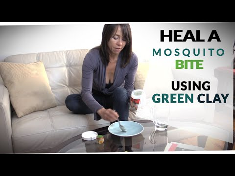 How to Get Rid of Mosquito Bites ~ Fast!