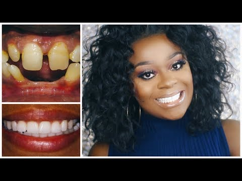 HOW I GOT THE PERFECT TEETH WITHOUT BRACES | NO MORE GAP TOOTH