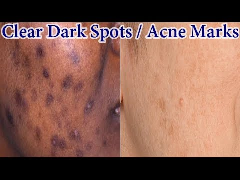 Home Remedy To Get Rid Of Dark Spots Acne Marks Naturally Fast