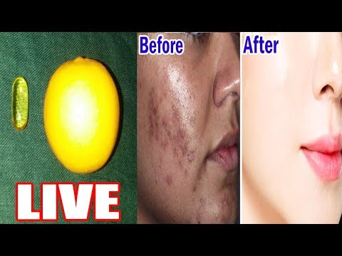 Apply Lemon Juice and Vitamin E Oil to Get Rid Of All Acne Scars, Pigmentation and Dark Spots