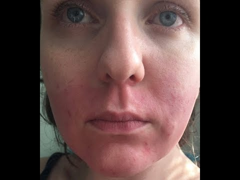 Boots Customer 'Left With Chemical Burn Like Red Marks On Her Face After Using Store's Own Hair Remo
