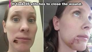 Trypophobia! Blackheads, Dilated Pores, Photoshop & Pimple