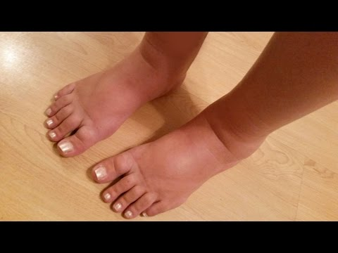 How to Relieve Swollen Feet and Ankles When Pregnant