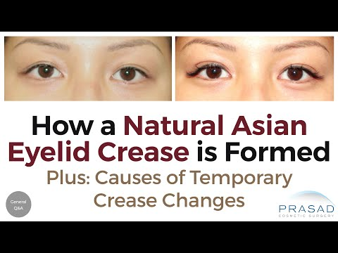 Causes of Natural Asian Double Eyelids Becoming Temporary Monolids, and Making it More Consistent