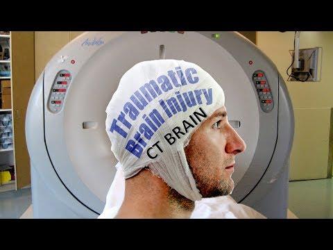 CT Brain in Head Injury