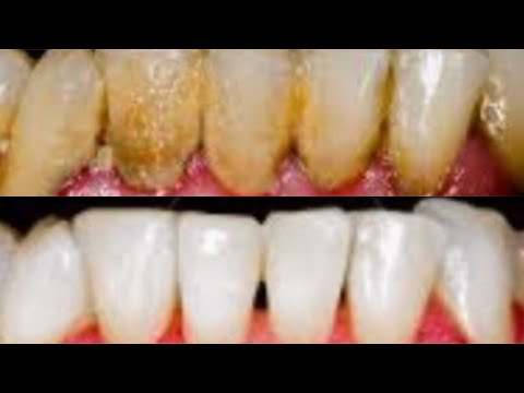 how to remove dental plaque in 2 minutes at home