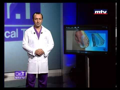 Dr T Medical Tips - Breast Augmentation 17 May 2013