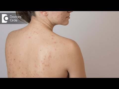 Tips to deal with Back Acne - Dr. Swetha Sunny Paul