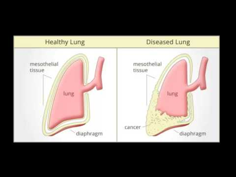 asbestos lung cancer symptoms