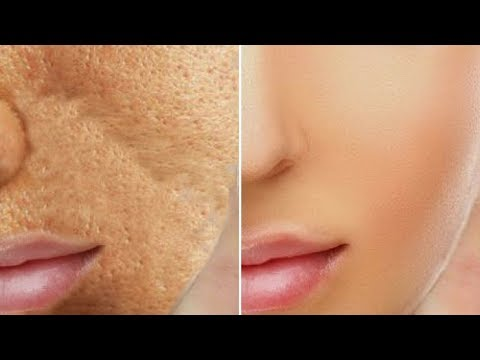 In Just 3 Use Get Rid of Large Open Pores and Get Smooth Spotless Glowing Skin Rabia Skincare