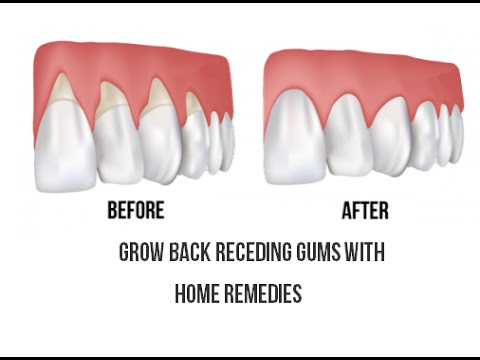 How to treat receding gums at home