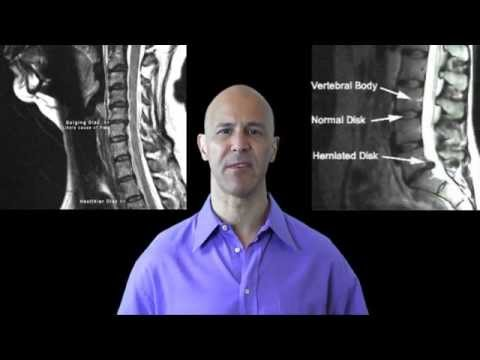 Drinking Water Reduces Neck Pain, Back Pain & Arthritis  /  Dr Mandell