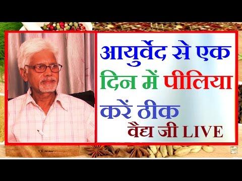 पीलिया को एक दिन में ठीक कर सकती है ये दवा | Jaundice Cure in Ayurveda By Vaidya Ji Live