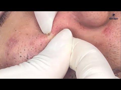 Xxx Mp4 Full Blackhead Popping Video HOT 2019 Part 1 3gp Sex