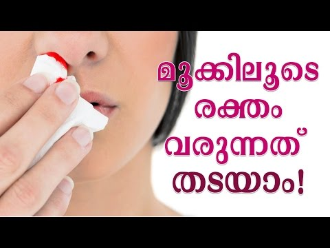 മൂക്കിലൂടെ രക്ത പ്രവാഹം | Stop Nose Bleeding or Epistaxis With These Home Remedies | Bloody Nose