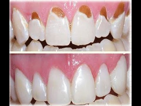 Tooth enamel loss & How to repair tooth enamel?