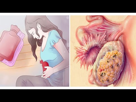 4 Early Symptoms Of Ovarian Cancer That Every Woman Needs To Know- By Healthy Ways