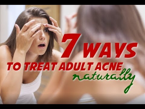 7 ways to treat adult acne naturally