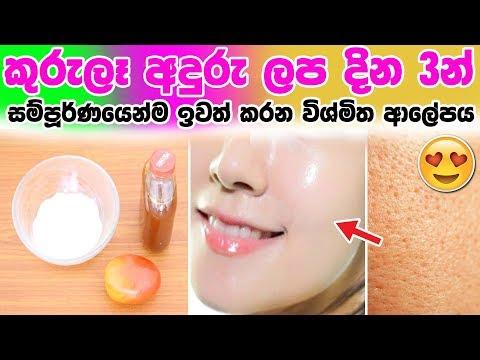 ✅ කුරුලෑ අදුරු ලප දින 3න් සම්පූර්ණයෙන්ම ඉවත් කරන විශ්මිත ආලේපය - 3 days skin repair tomato mas