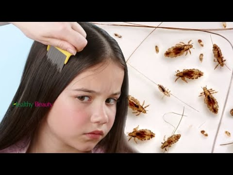 How to Get Rid of Head Lice Fast and Easy