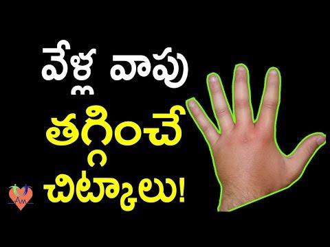 వేళ్ల వాపు తగ్గించే చిట్కాలు!   Home Remedies To Treat Swelling Fingers   Arogya Mantra