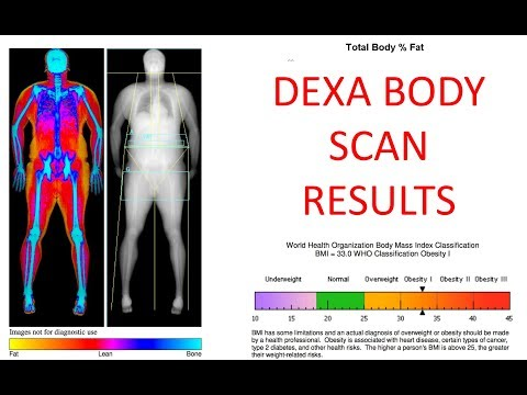 DEXA SCAN full Body Scan results 3 month update have i lost body fat?