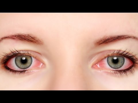Home Remedies to Get Rid of Red Eyes | Red eye