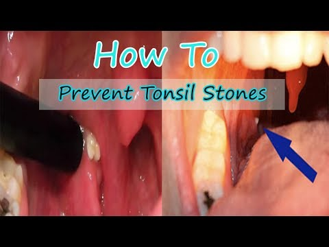 How To Prevent Tonsil Stones (And Why They Cause Bad Breath)