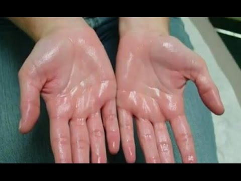 Home Remedies for Sweaty Hands and Feet