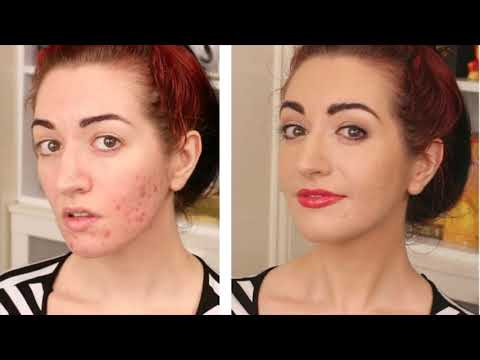 Tea Tree Oil Is Most Effective To Clean Bacteria And Treats Acne And Pimples- How To Use