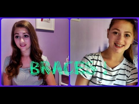 ♡All About Getting Braces♡