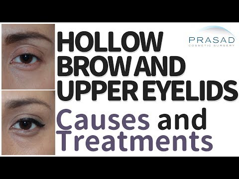 How to Treat Upper Eyelid and Brow Hollowing, and the Advantages of Non-Surgical Treatment
