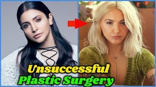 Unsuccessful Plastic Surgery in Bollywood
