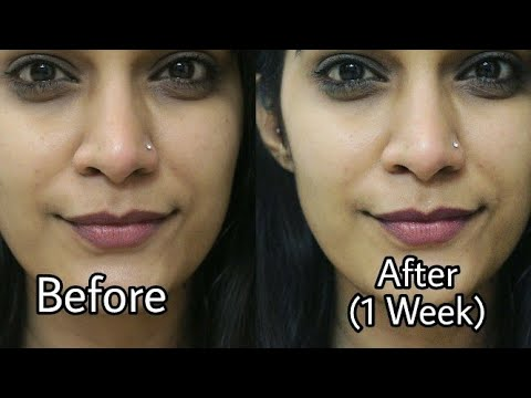 How to Remove Pimple & Acne Scars | Home Remedies For Pimple Removal | Super Style Tips