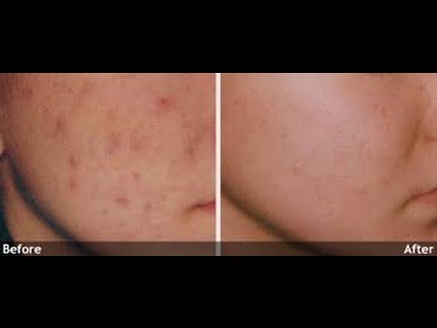 How to remove pimples and scars| NaghmaSyed