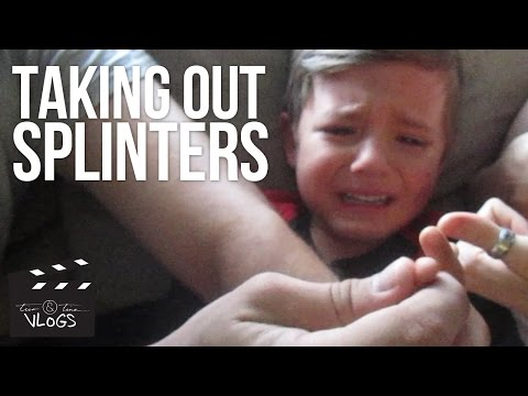REMOVING SPLINTERS FROM KIDS | Weekly Vlog Part 2 | September 30-October 2