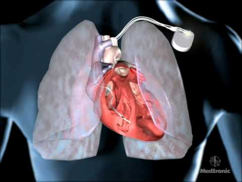 ani Detect Fluid in Lungs