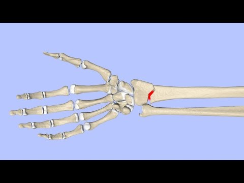 Principles of Fracture Healing