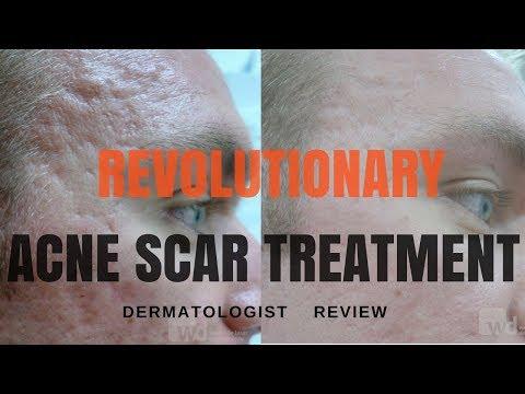 Acne scar treatments- 2018 UPDATE