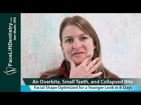 Deep Overbite Correction, Chin Size, Face Shape, Premature Aging Treated with Face Lift Dentistry®