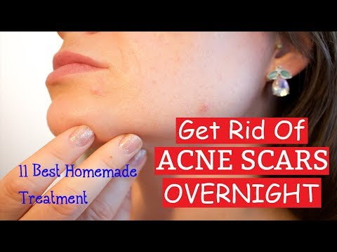 Get Rid of Acne Scars with 11 Best Homemade Treatment | How To Remove Pimples Overnight