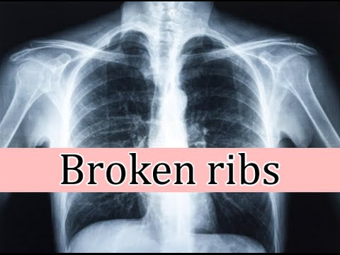 Broken ribs, symptoms and treatment